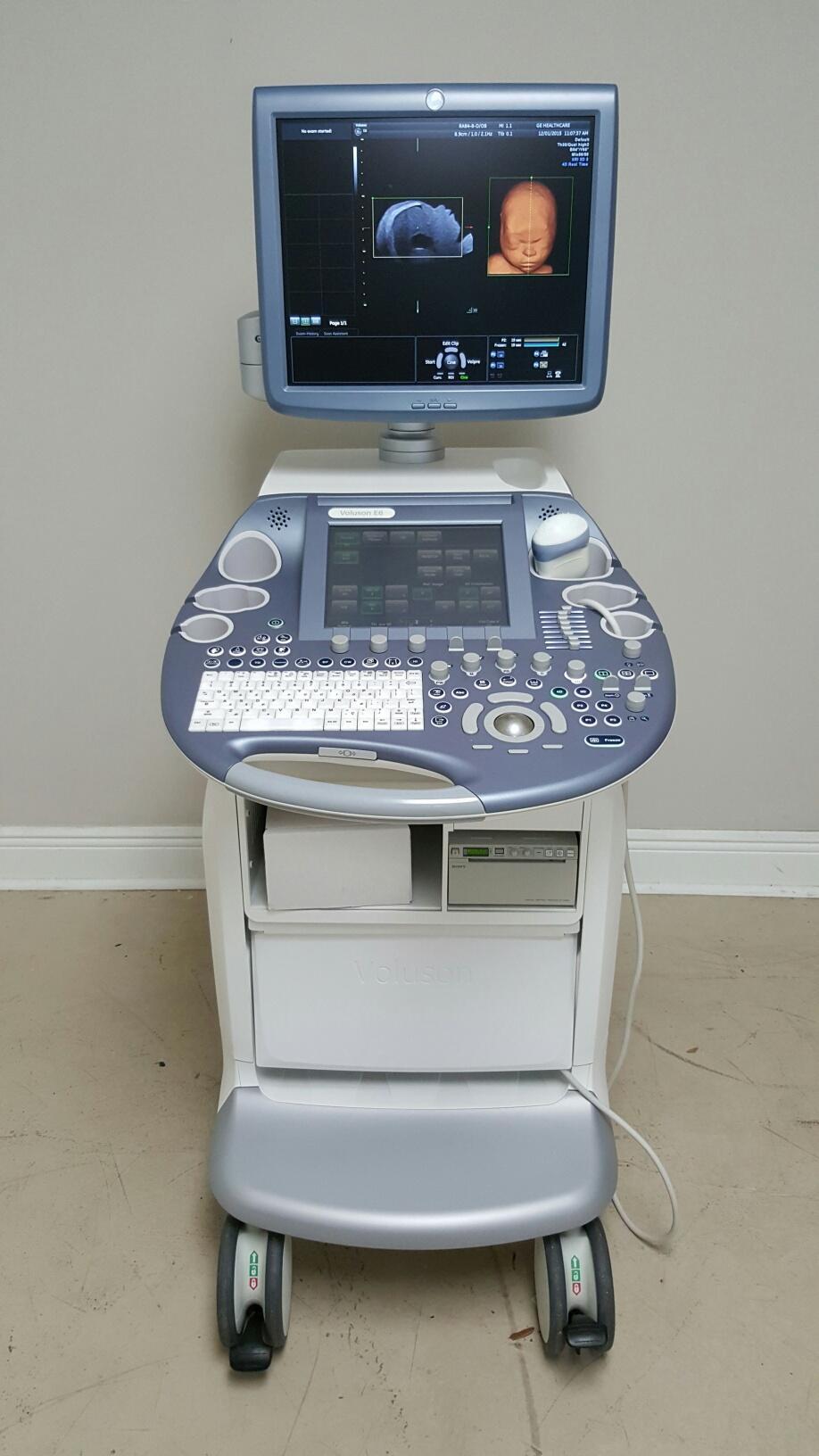 GE Voluson E6 ultrasound BT10 3D 4D