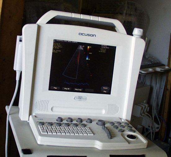 Acuson Siemens Cypress Portable Ultrasound