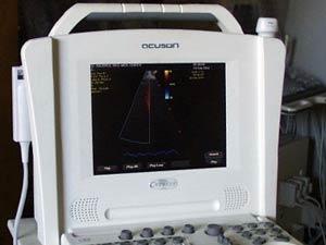 Ultrasound Equipment