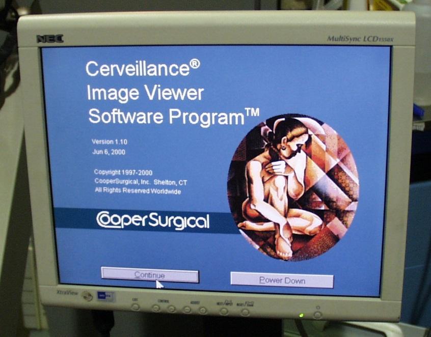 Cooper Surgical CS1600 Digital Video Colposcope