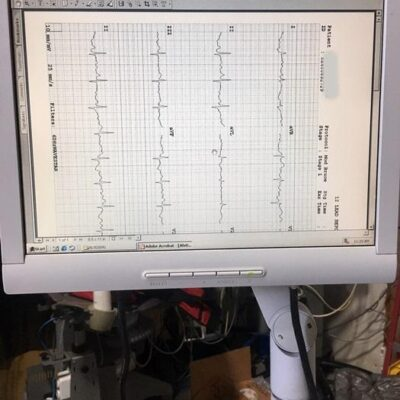 Cambridge Heart Stress Test